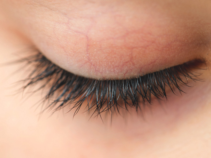 Itchy Eyelashes Causes Treatments And Prevention