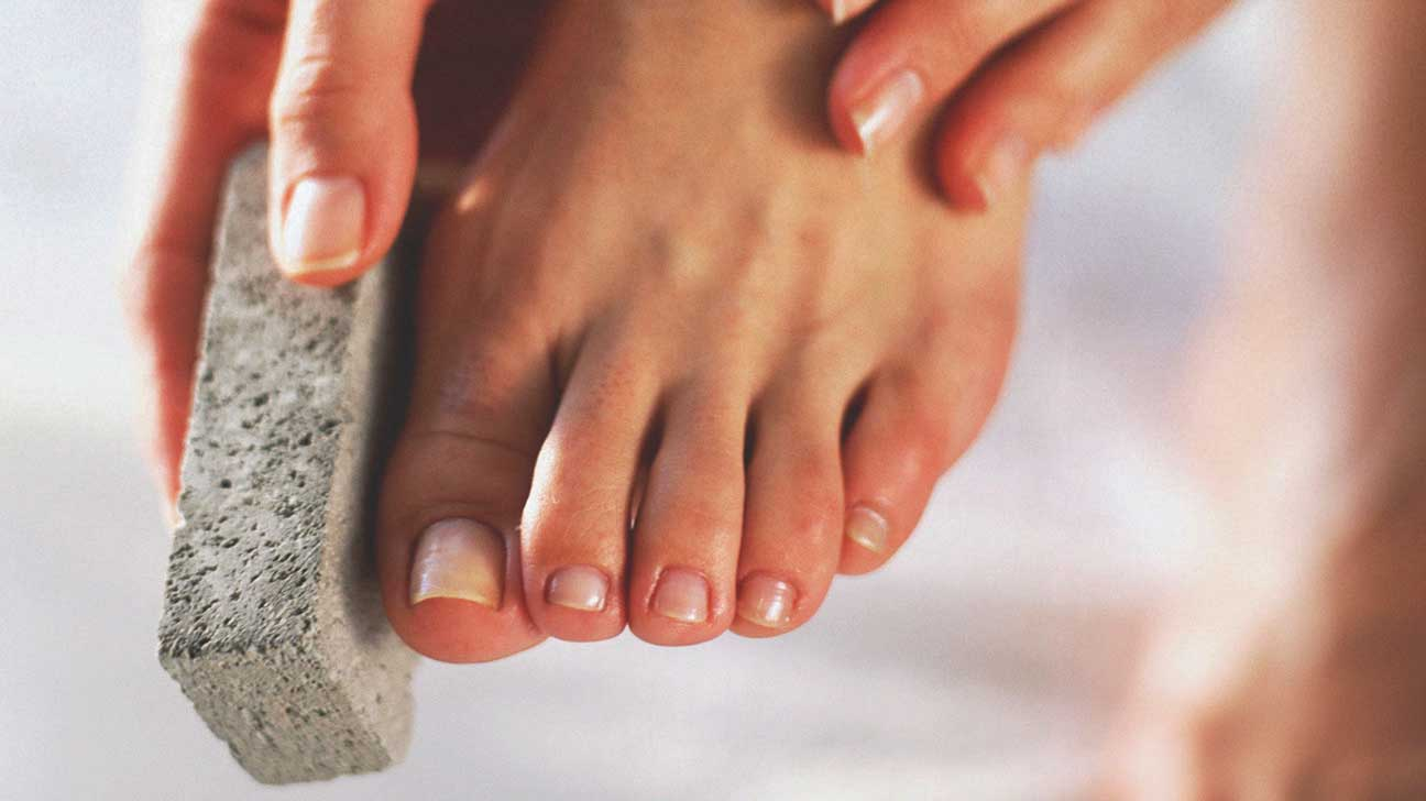 how to remove peeling skin from feet