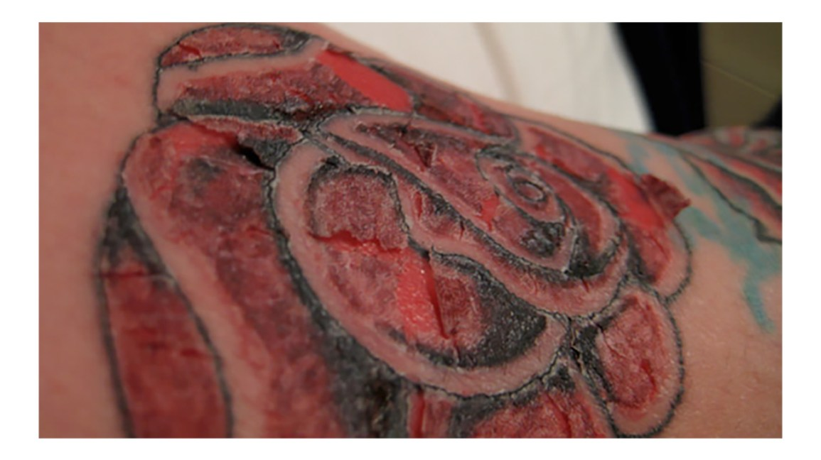 Tattoo Allergy Rash And Other Reactions To Ink Treatment And M