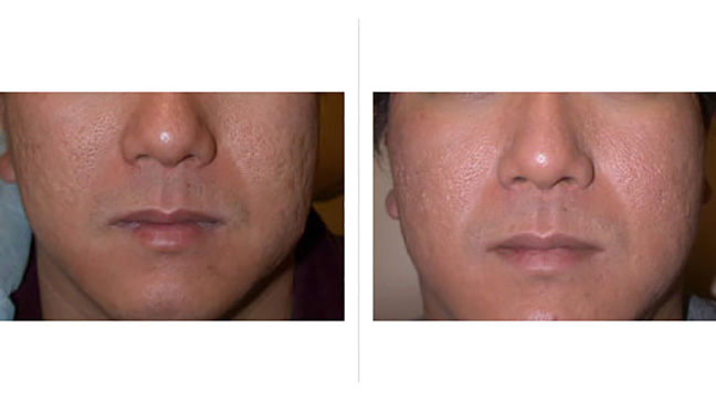 facial laser surgery Cost of