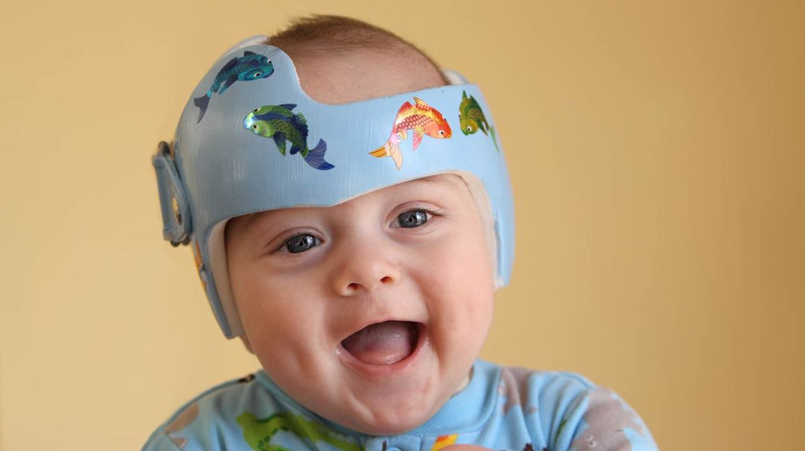 why do babies wear helmets medical helmet therapy faqs