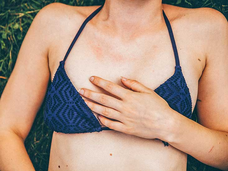Keto Diet Rash: What You Need to Know