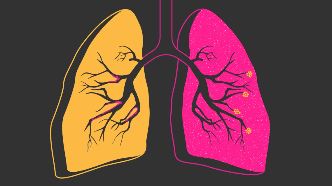 COPD: Facts, Statistics, and You