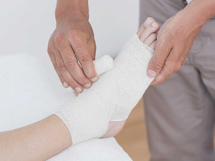 Trimalleolar Fracture Recovery Surgery And Prognosis