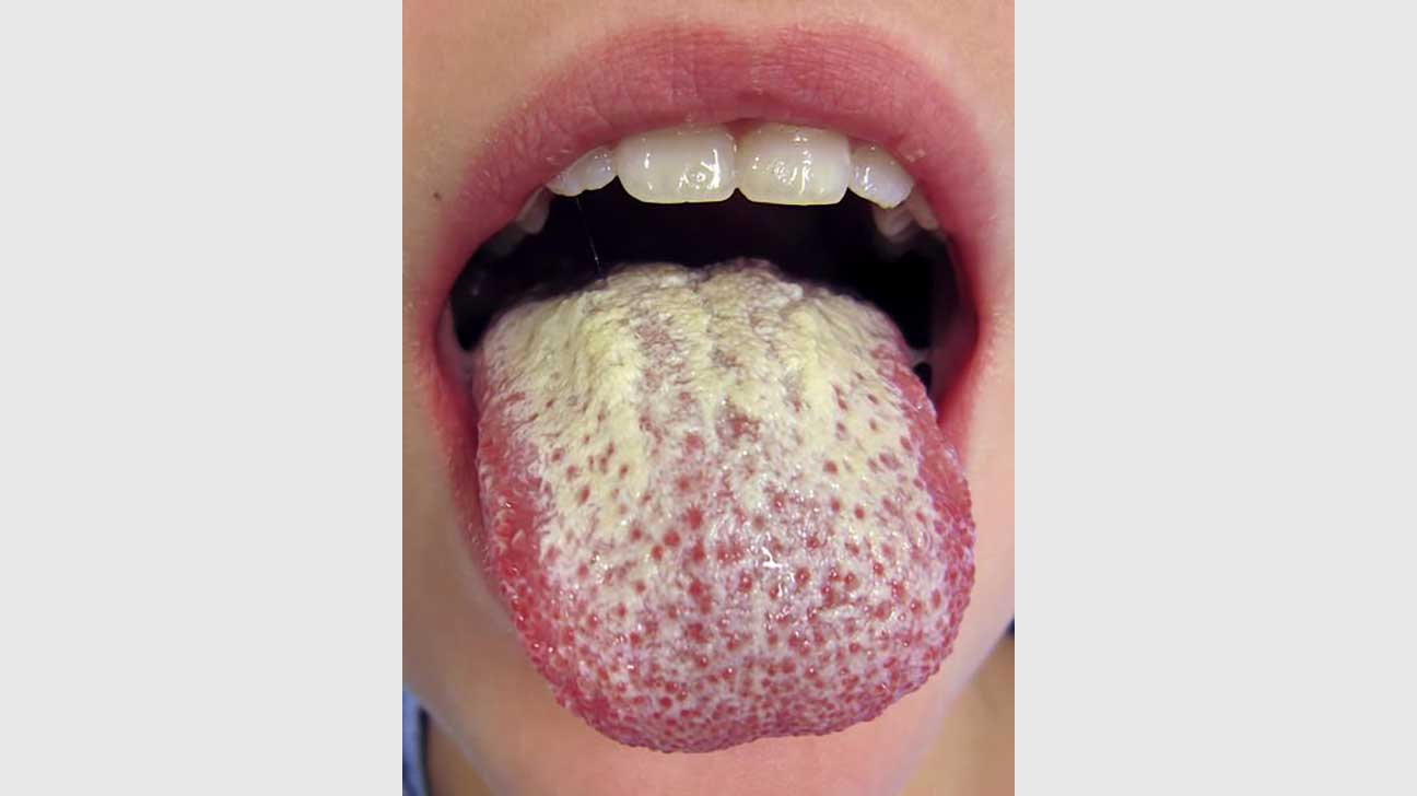 medical problem tongue Hairy
