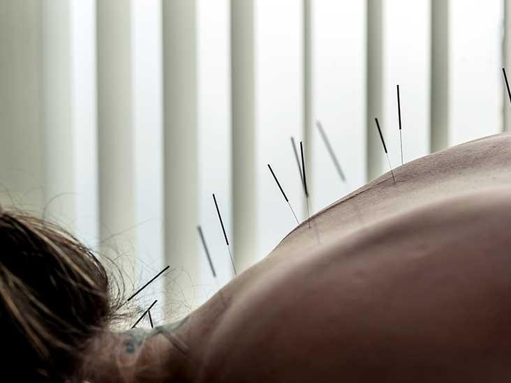 """Kết quả hình ảnh cho acupuncture"""""""