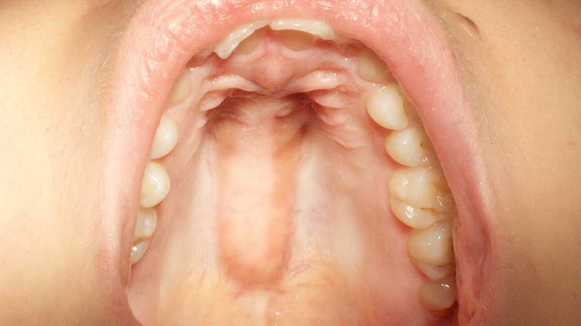 Torus Palatinus: Symptoms, Diagnosis, Causes, and More
