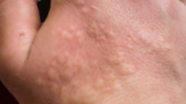 Stinging Nettle Rash Pictures Treatment Home Remedy
