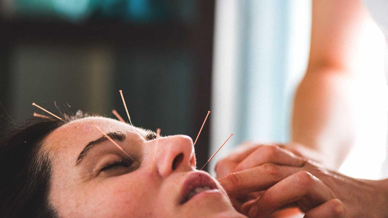 Facial acupuncture training