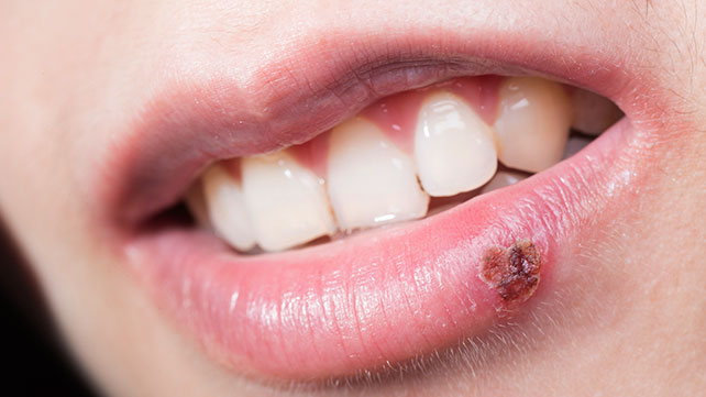 Stages of a cold sore with abreva