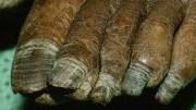 thick toenails in elderly