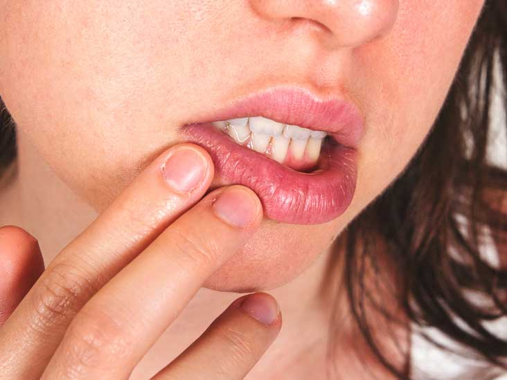 All clear, Can you contract genital herpes from oral sex