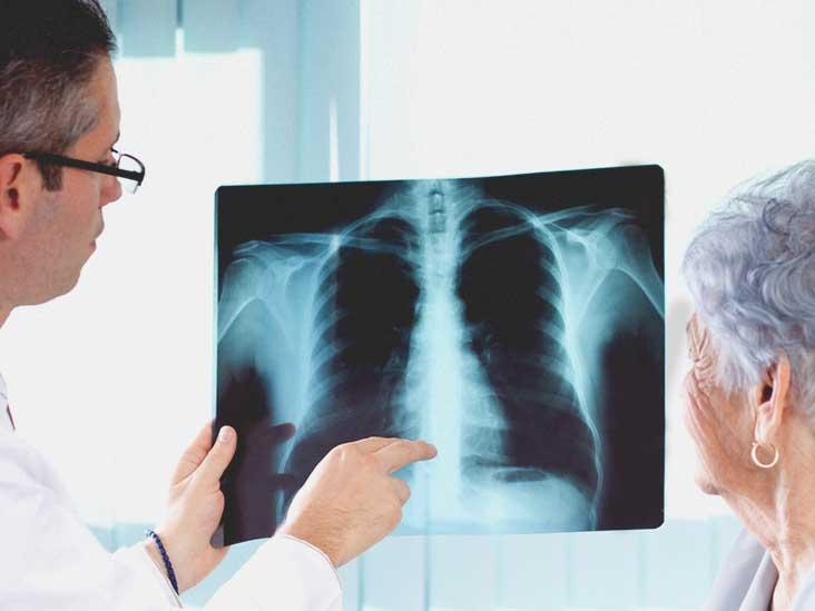 adults Walking older pneumonia in