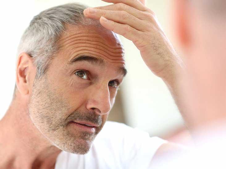 sudden loss of facial hair