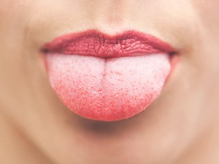 White spots on top of tongue pictures — 1