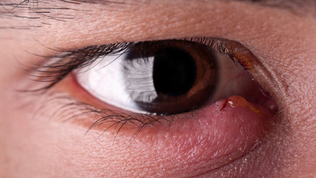 how to get rid of a stye 8 home remedies and treatments