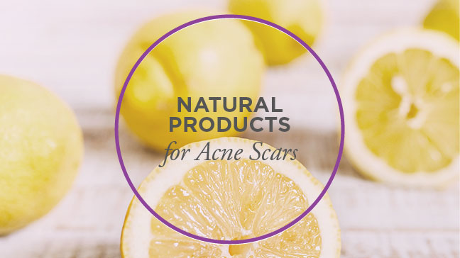 5 Natural Products To Help Acne Scars