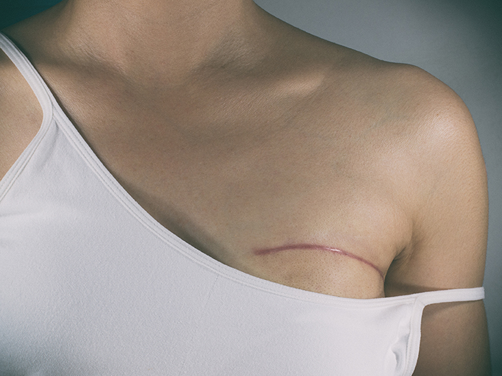 Breast cancer chemotherapy after mastectomy