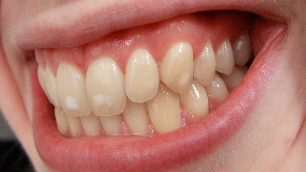 Pete albe pe dinti la copii