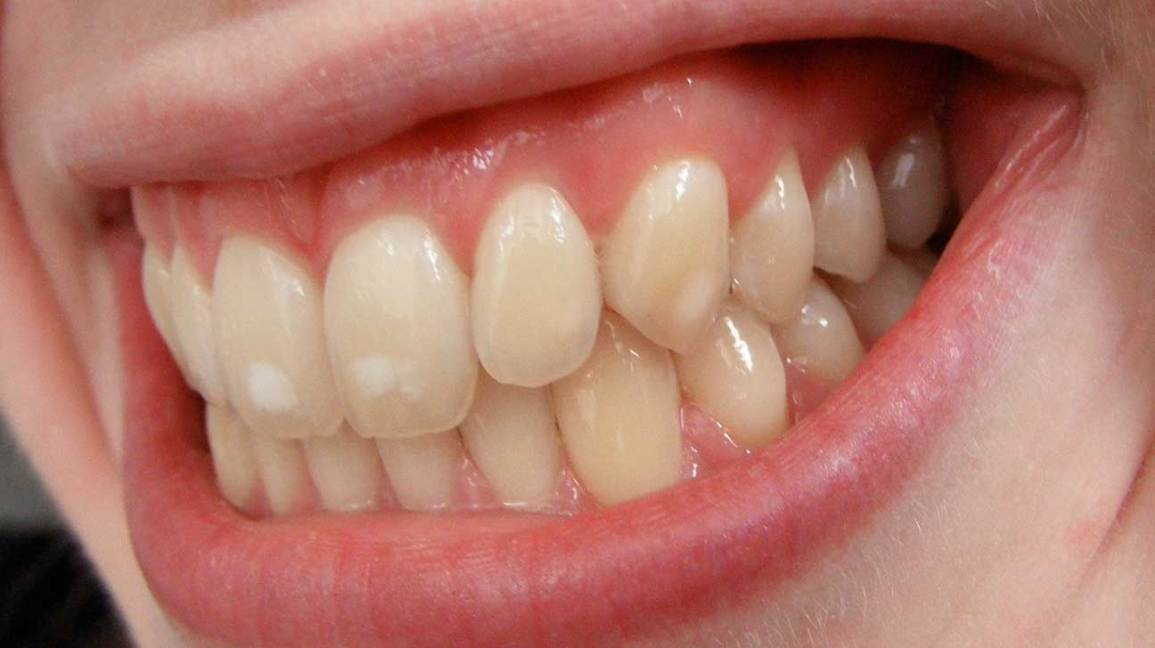 White Spots On Teeth In Children While Sick And More