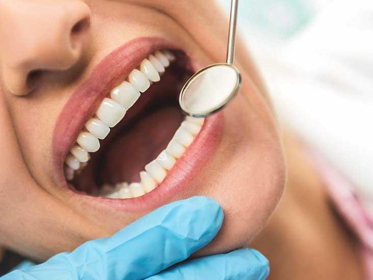 How To Remove Veneer Teeth