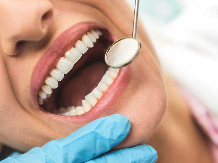 Dental Veneers Cost Procedure Vs Crown Implants And More