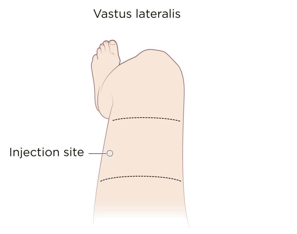 intramuscular injection definition and patient education