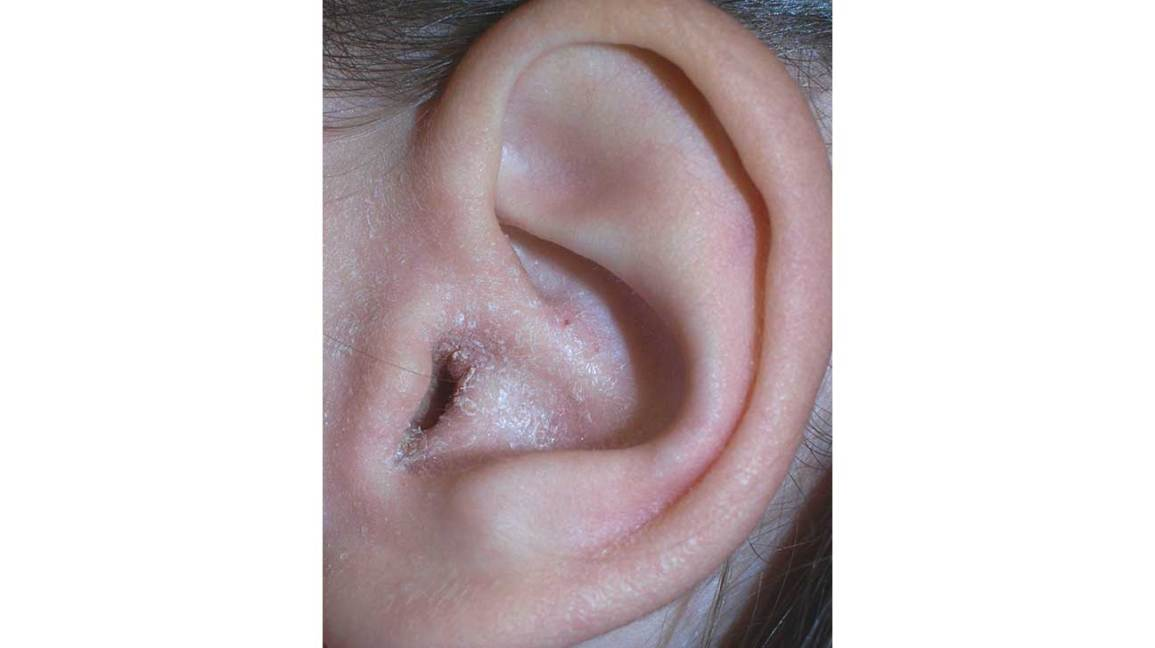 Ear Eczema Symptoms Causes Diagnosis Treatment Warning Signs