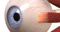 globo del ojo