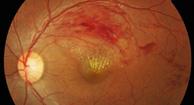 Oclusión vascular retiniana