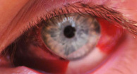 Sangrado por debajo de la conjuntiva Hemmorhage-subconjuntival