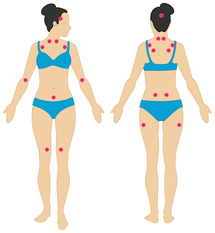 pictures of fibromyalgia symptoms