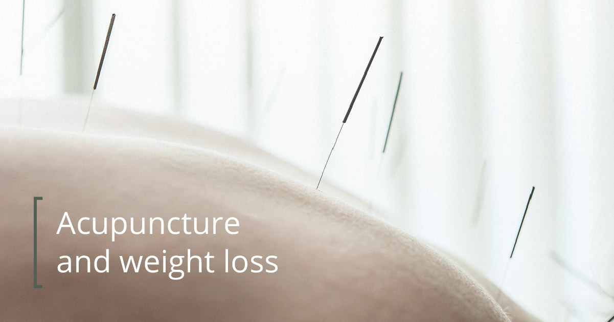 acupuncture for weight loss what you need to know stylecaster