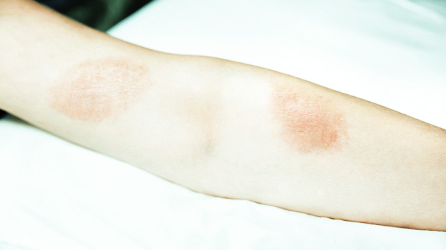 The Best Poison Ivy Remedies Soaps Creams And More