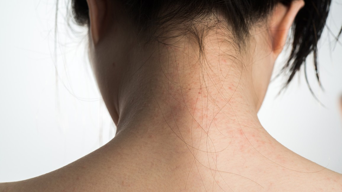 myths about psoriasis