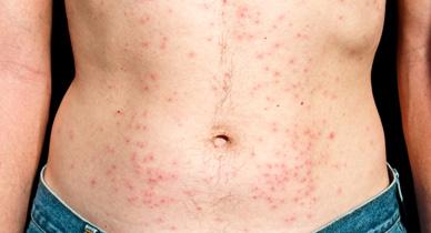 Psoriasis vs. Folliculitis: Know the Facts