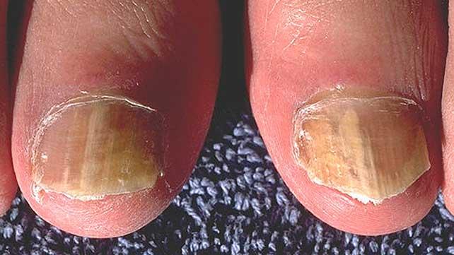 Psoriatic Arthritis Nail Fungus Art Ideas
