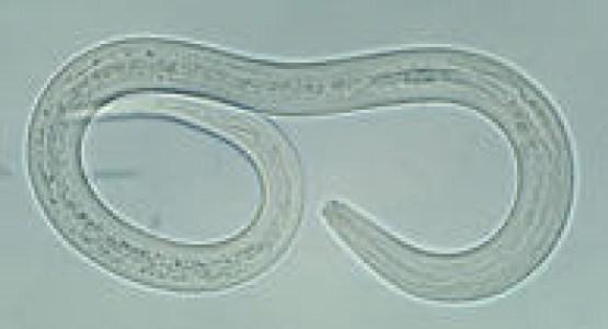 Hookworm Infection