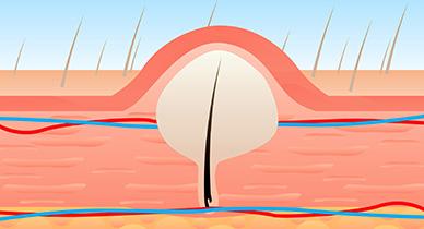 Vaginal boils or vaginal bumps