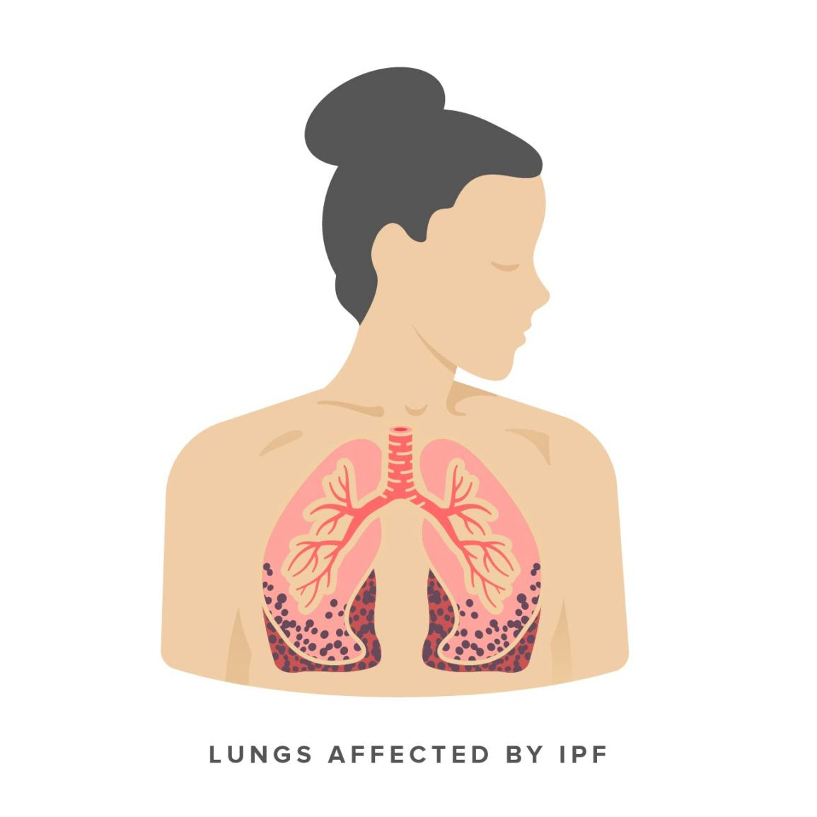 lungs affected by IPF