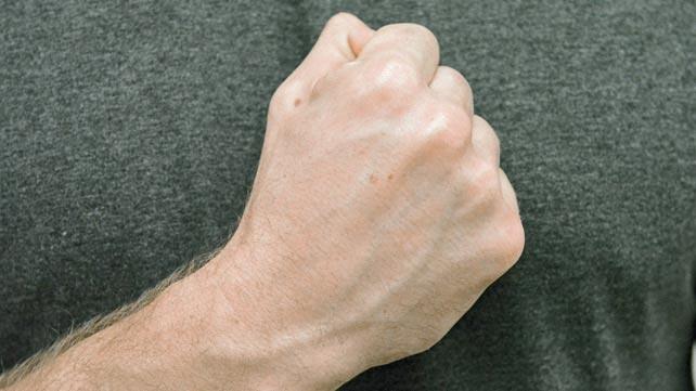 Schwellungen und Knoten an den Händen: - Entzündliches Rheuma ...
