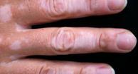Photo of vitiligo patches on a hand.