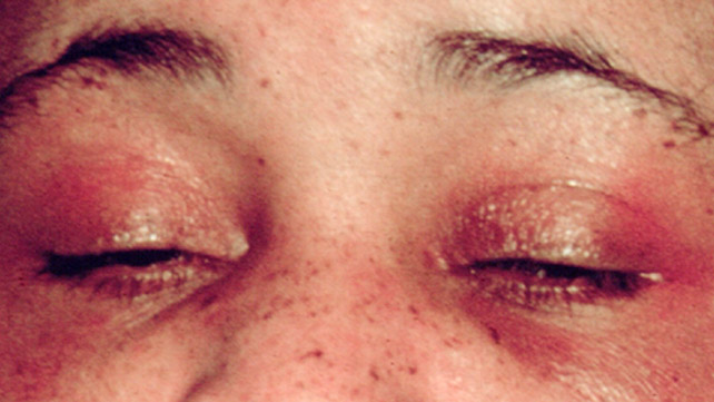 heliotrope rash on eyes