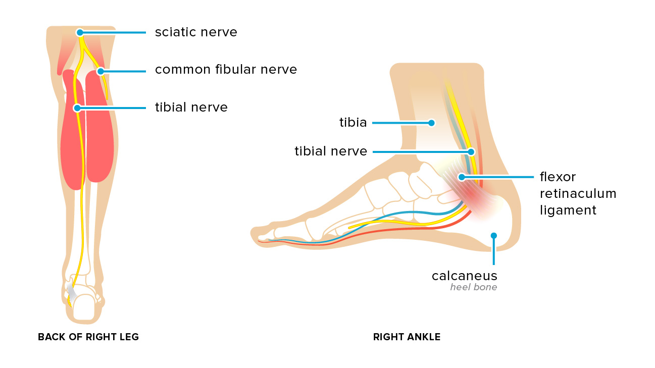 bones in your foot diagram influenza venn tarsal tunnel syndrome symptoms causes and treatments