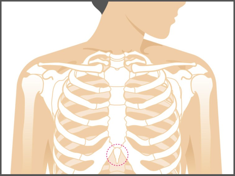 Is My Chest Pain Caused by the Xiphoid Process?