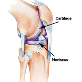 Image result for knee with cartilage