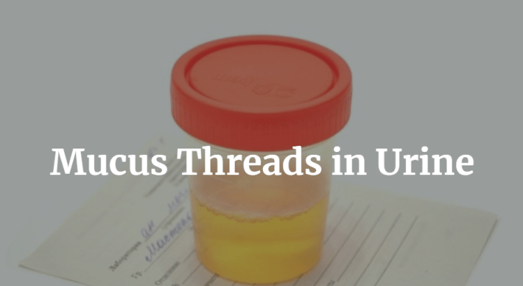 Mucus Threads in Urine