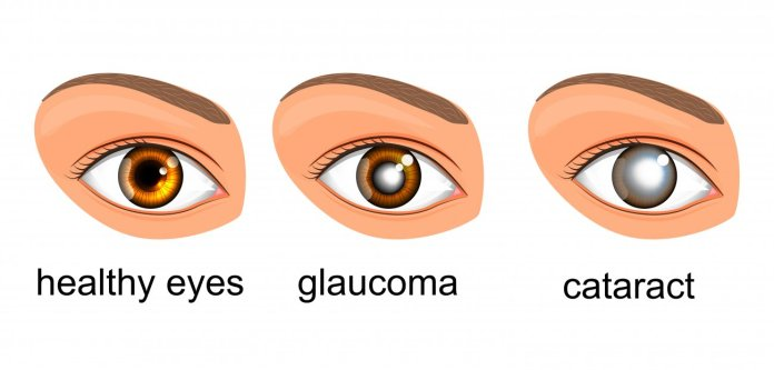 Diet Tips For Glaucoma