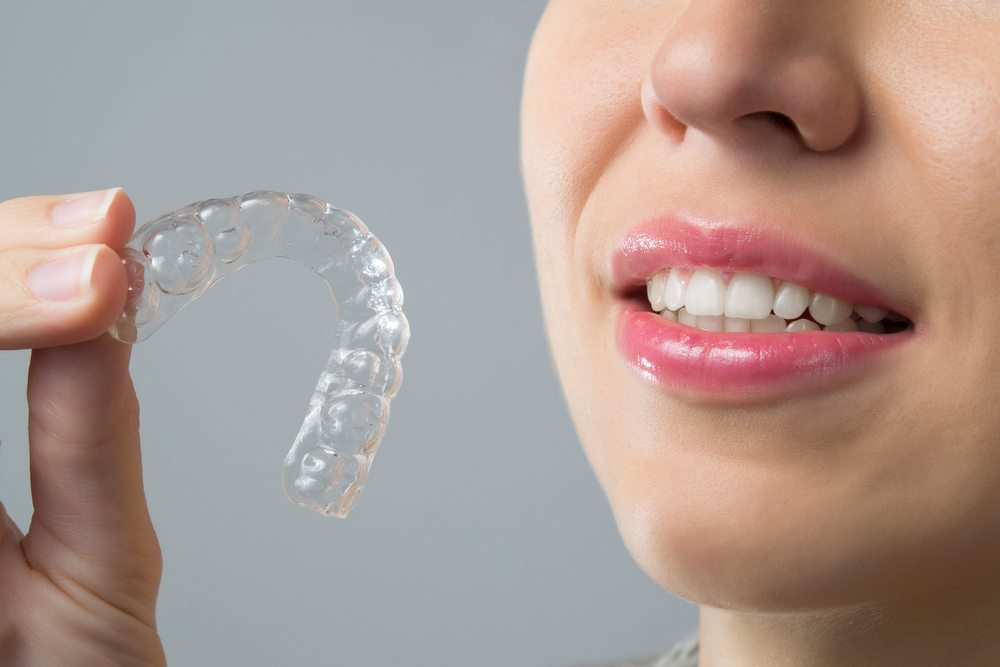 Know about Invisalign