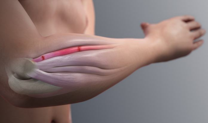 Tennis Elbow : Symptoms, Causes